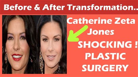 catherine zeta jones surgery catherine zeta jones plastic surgery before and after full