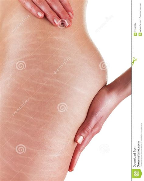 Miller Has Stretch Marks And Cellulite by Stretch Marks And Cellulite Stock Images Image 37532274