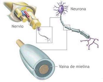 mielina e alimentazione la sclerosi multipla ccsvi vista da sam e non