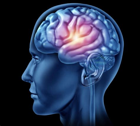 stroke mood swings brain dimmer switch influences mood disorders