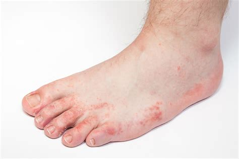 athletes foot shoe athlete s foot foot fungus dr patel edgebrook foot