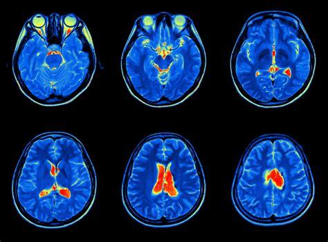 tumore testa tumore al cervello e sopravvivenza medicinalive