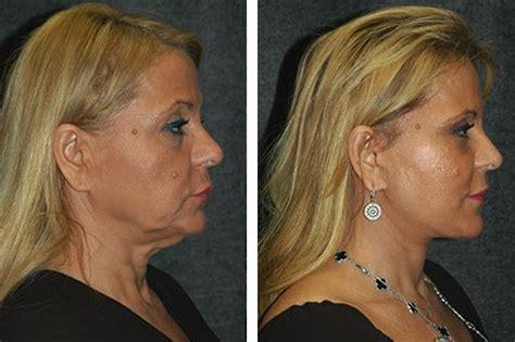 mini face lift new york facial plastic surgery deep plane facelift best deep plane facelift surgeon