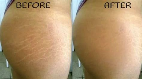stretch marks before and after hairstylegalleries com