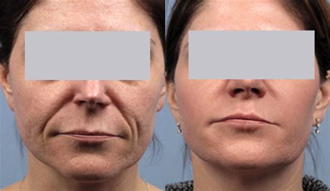 spectralift non surgical facelift
