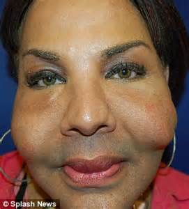 imagenes cosmetic miami dozens disfigured in black market plastic surgeries by