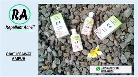 buat obat bius alami 085867477317 obat alami jerawat buat pria paling aman dan