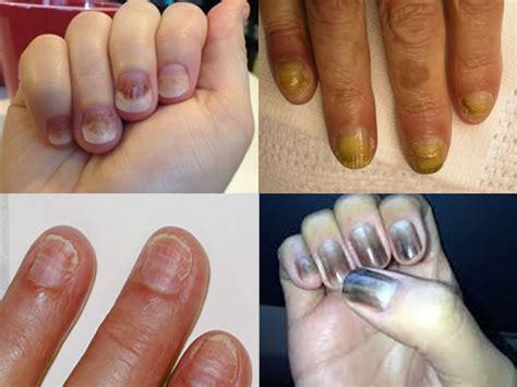 nails lifting from nail bed nails lifting from nail bed after chemo nail ftempo