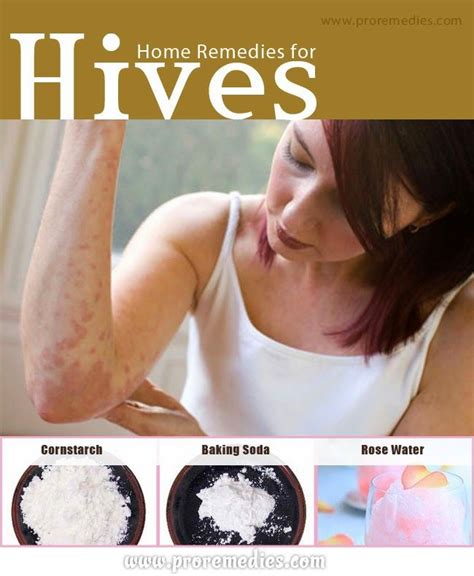 67 best images about hives on 2 for 1 itch
