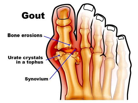 here s how to treat gout at home and prevent another flare
