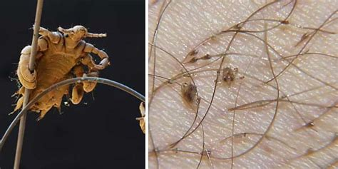 what do crab lice look like pubic lice sexinfo online