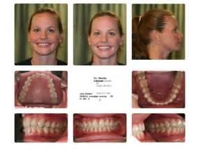 my invisalign experience edwards family dental