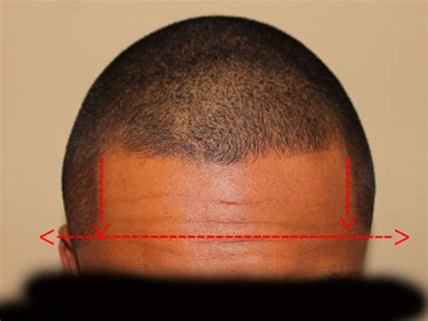 how wide is a normal hairline part i m obsessing and stressing over my hairline with photos