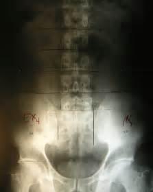 marked pelvic ap lumbar spine x planet chiropractic