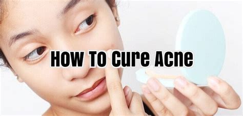 How To Cure Acne Naturally by How To Cure Acne Cure Severe Acne Naturally
