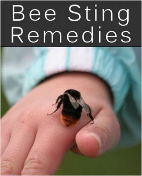 15 bee sting home remedies tips homeremedies