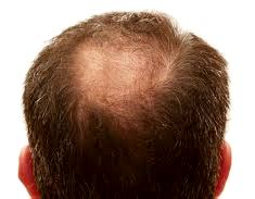 inositol for hair loss should you take it progressivehealth inositol for hair loss should you take it