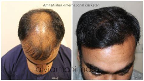 gautam gambhir hair transplant gautam gambhir hair transplant dr arihant surana