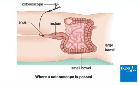 what information does an employee expect an employee colonoscopy health information bupa uk