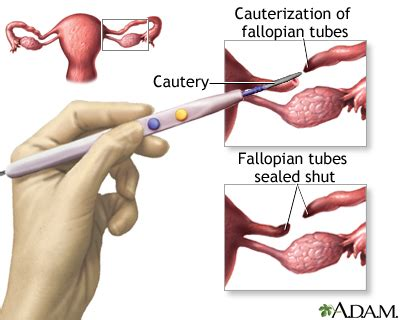 tying tubes during c section scripps health tubal ligation