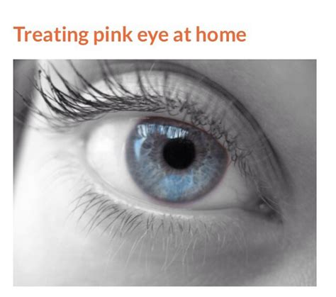quot how to treat pink eye at home quot musely