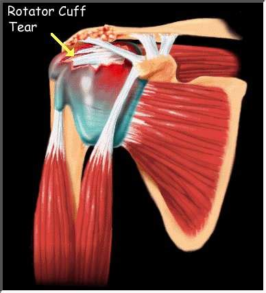 torn rotator cuff diagram oup chapter 11 orthopaedics and