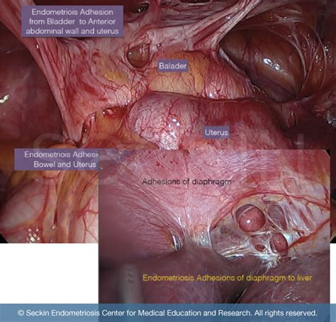 endometriosis caused by c section pelvic adhesions resection symptoms bowel adhesions