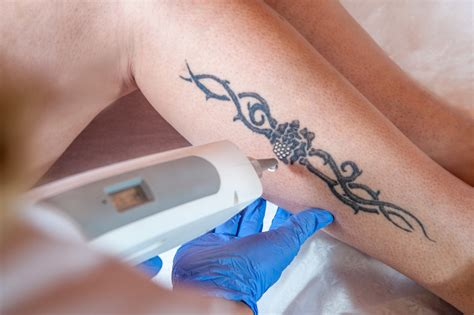 laser tattoo removal white ink laser removal how to numb your skin before
