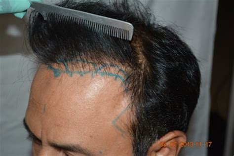 hair transplant cost in the philippines hair transplant pics and cost with photos in pakistan