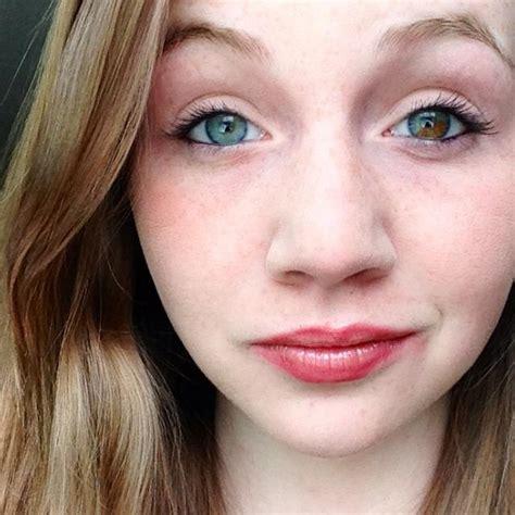 what is it called when hair is dark pn top light on bottom heterochromia iridium pics