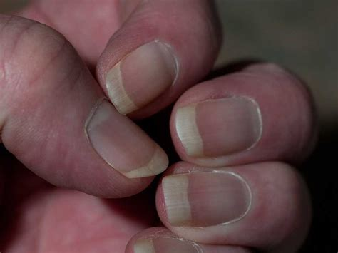 receding nail bed business news 20 jul 2014 15 minute news know the news