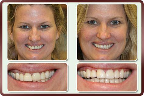 crowns bridges prestonwood dental