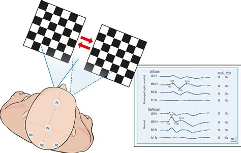 pattern reversal visual evoked potentials evoked potential tests in clinical diagnosis tidsskrift