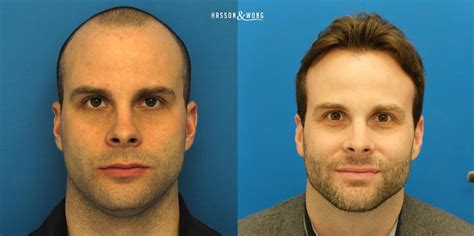hair transplant america hair transplant america dr tayfun oguzoglu hair