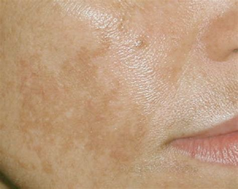 Chocolate Spots by White Patch Of Skin On Back Free Backupweek