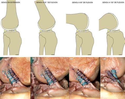 Tiroir Du Genou by Anatomy Knee Ligament Anatomy And Biomechanics Of