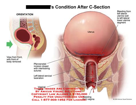 sutures used in cesarean section condition after c section