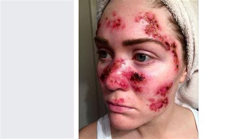 cancer de la peau un selfie choc pour pr 233 venir du danger