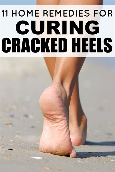 11 home remedies for curing cracked heels