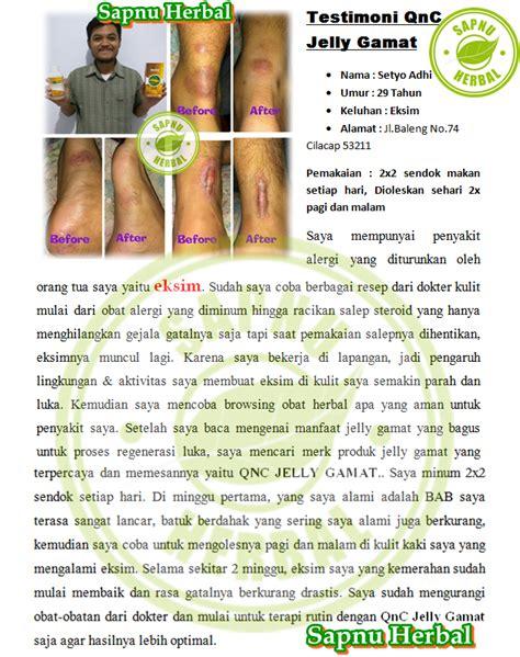 Obat Alami Mengatasi Gatal Eksim cara mengatasi kulit sensitif mudah gatal secara alami