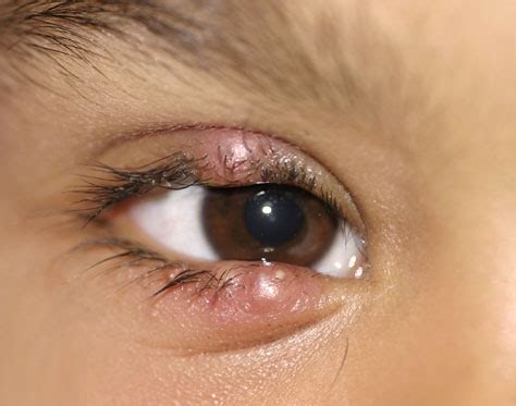 eye stye stye sty causes symptoms treatment home remedy prevention pictures diseases
