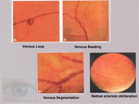venous beading diabetic retinopathy