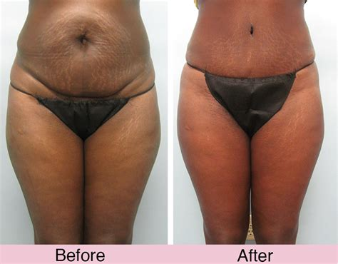 Plastic Surgery After C Section by Tummy Tuck Imagine Plastic Surgery Imagine Plastic Surgery