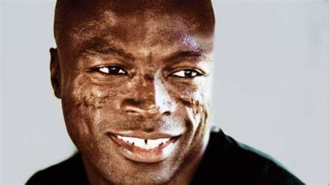 the about the scarring on singer seal blackdoctor