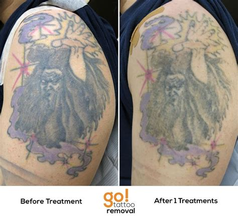 fresh tattoo removal best 25 wizard ideas on wizard