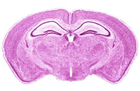 mouse brain coronal section mouse brain atlas quotes