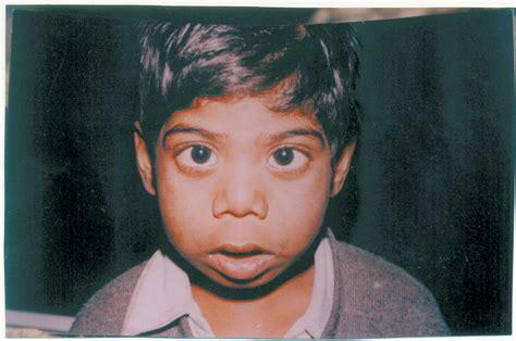 kibbe short nose big eyes indian pediatrics editorial
