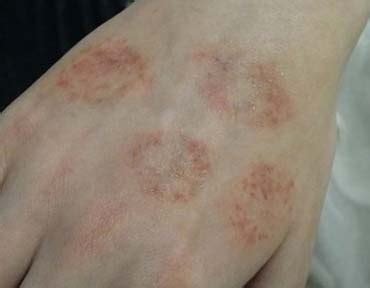can you get a tattoo while on antibiotics ringworm on pictures and treatment