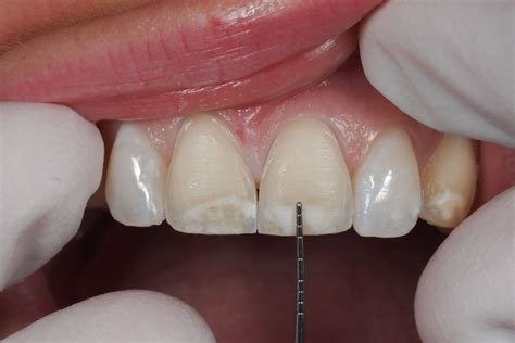 porcelain veneers cost and options fiveways dental