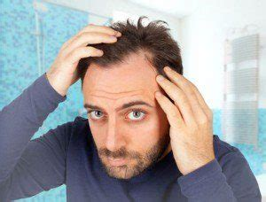 creatine baldness best hair loss treatment for a no nonsense guide